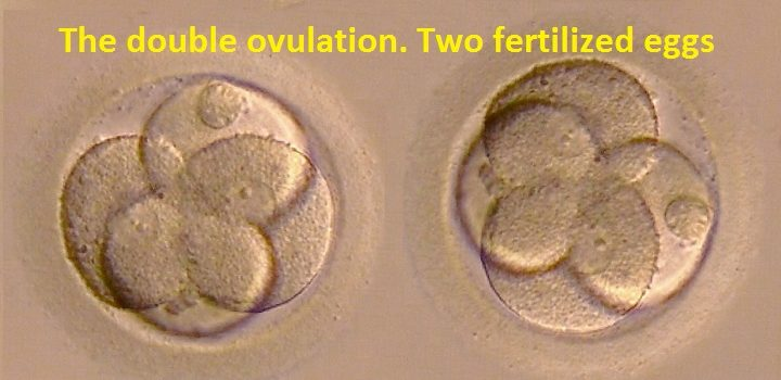 The double ovulation. Two fertilized eggs