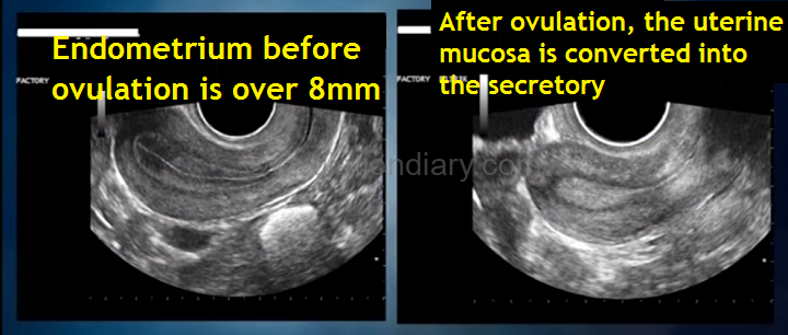 The state of the uterine endometrium determines the readiness of the body for ovulation