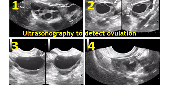 Ultrasonography to detect ovulation